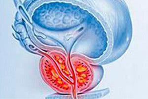 Диагностика абсцесса предстательной железы