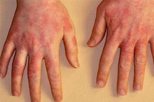 Лечение актинического дерматита