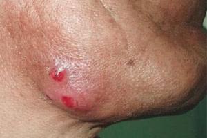 Причины возникновения актиномикоза