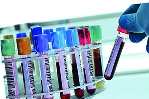 Причины повышения АСТ в крови