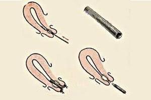 Причины атрезии матки