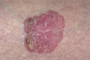 Диагностика внутриэпидермального рака