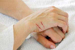 Профилактика и лечение болезни кошачьих царапин