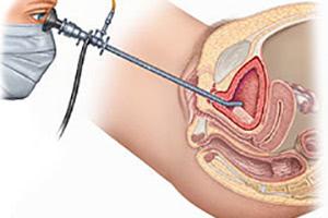 Бужирование уретры у женщин