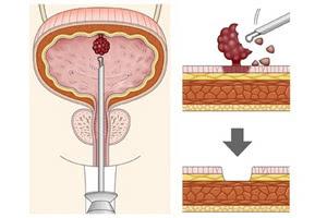 Диагностика доброкачественных опухолей мочевого пузыря