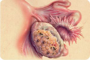 Симптомы доброкачественных опухолей яичников
