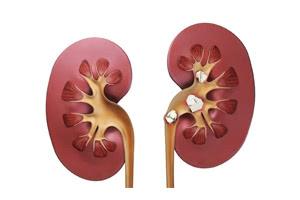 Способы лечения мочекаменной болезни