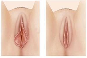 Лабиопластика (коррекция половых губ)