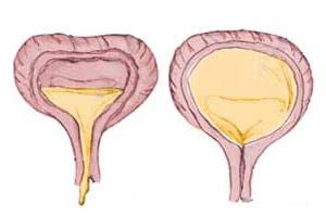 Диагностика нейрогенного мочевого пузыря