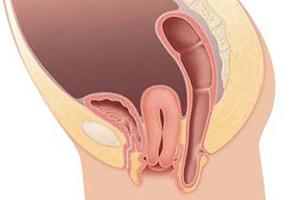 Симптомы аномального положения матки