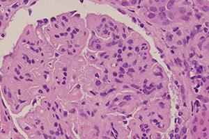 Острый гломерулонефрит: симптомы заболевания