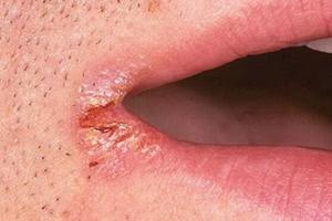 Первичный сифилис