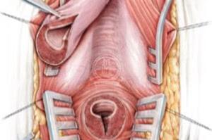 Уретропластика анастомотическая