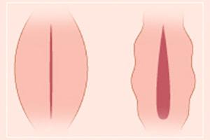 Увеличение больших половых губ