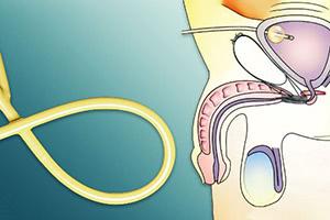 Замена надлобкового дренажа мочевого пузыря