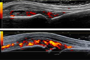 УЗДГ вен и артерий верхних конечностей