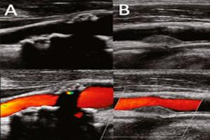 Как делают УЗДГ вен и артерий верхних конечностей
