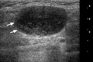 Показания и противопоказания к УЗИ лимфоузлов шеи