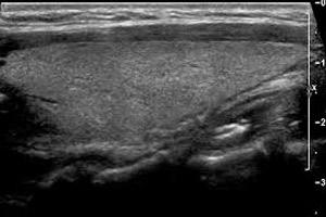 Как проходит УЗИ щитовидной железы